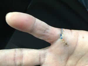 Victor's Hand Injury